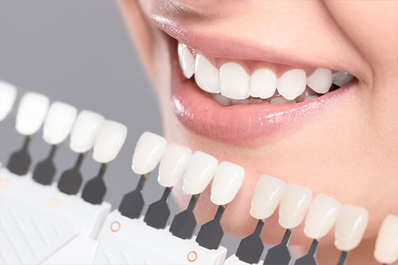 Protecting Your Smile